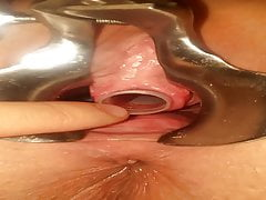 Peehole play 12